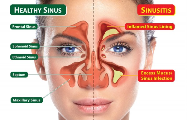 what_is_sinusitis