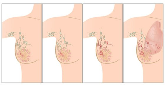 primary-causes-of-breast-cancer-youll-want-to-know